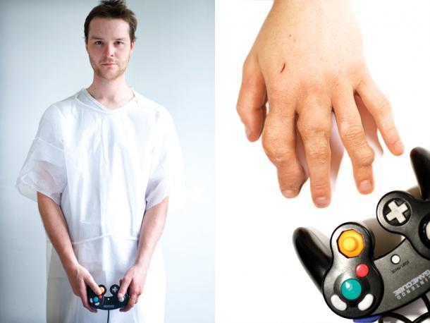 Game-Arthritis-01-610x458