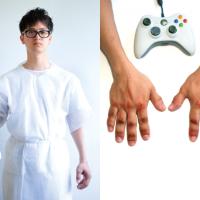 """""""Game Arthritis"""", deformidades por causa de los videojuegos"""